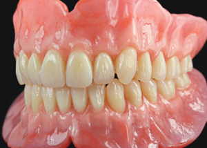 prodshot_dentures-2